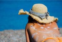 皮肤晒伤脱皮怎么办 皮肤晒伤脱皮多久能好