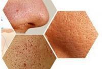 毛孔粗大的原因 毛孔粗大如何改善?