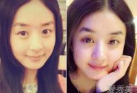 赵丽颖陈妍希素颜比拼 看谁更会保养?
