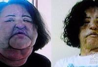 中韩女星痴迷整容 术后容貌难以辨识(图)