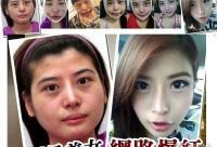 """26岁台湾女子""""削骨整形""""全过程(图)"""