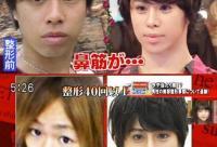 日本变态男疯狂整容 一不小心变蛇精脸