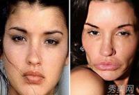 整容失败案例:丰唇隆鼻垫下巴风险大(图)