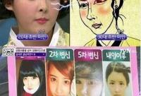韩国女子爱上整容 28次整容变漫画肉脸