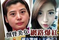 """26岁台湾""""削骨美女"""" 整形削骨全过程"""