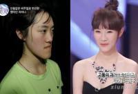 中国恐龙女变白肤美 女星整容前后对比照