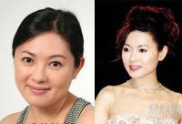 李丽珍大s王菲 10大女星打瘦脸针整容前后