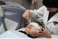 亲历医学美容:激光祛痘和祛黑斑过程揭秘