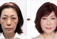 日本整形医院曝光 25组女性整容对比照