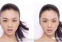 女性毛发移植手术